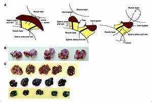 Mouse Models Of Subcutaneous Spleen Reservoir For Multiple