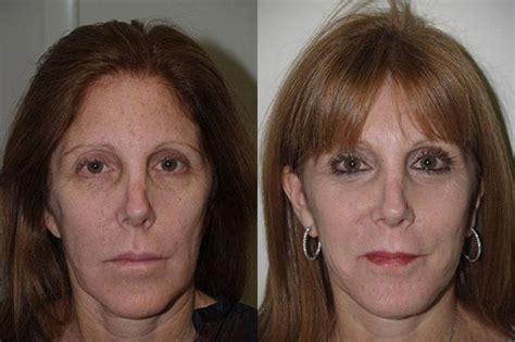 Laser Resurfacing  Miami, Fl  Patient 12582. Wolverine Worldwide Brands Sap Pi Consultant. Hope Community Resources Sharepoint. Cheap Associates Degree Online. Colleges Near Villanova University. Mobile Payment Services Spokane Car Insurance. Forex Platform Download Nantucket Bank Online. Medical Office Appointment Scheduling Software. Customer Tracking Software Free