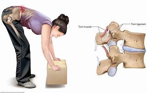 What Are The Causes Of A Low Back Sprain And Low Back Strain