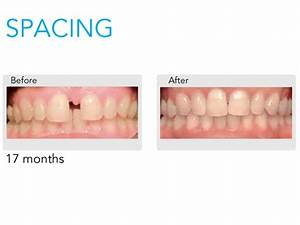 Invisalign Invisible Braces in Landsdale, Clear Braces, Dr ...