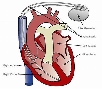 Pacemaker Heart Pace Pacemakers Generator Electrical Types