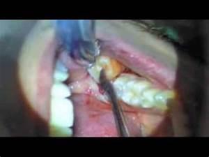 Symptome Dent De Sagesse : dent de sagesse youtube ~ Maxctalentgroup.com Avis de Voitures