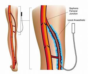 Vein Problems And Treatments At Palm Clinic Auckland