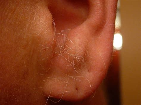 ear hair wikiwand