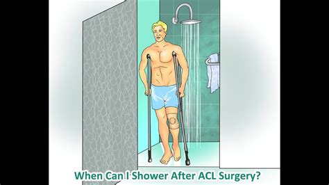 How To Shower After Acl Surgery - when and how can i shower after acl surgery
