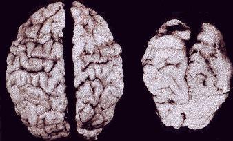 jak alkohol wplywa na mozg dziecka malgorzata klecka