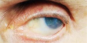 What Is The Expected Duration Of Keratitis