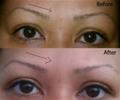 olive oil for face wrinkles