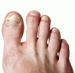 Мази от грибка на ногте