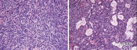 颈部(软组织和淋巴结)恶性肿瘤 (二):滑膜肉瘤 - 91360智慧病理网