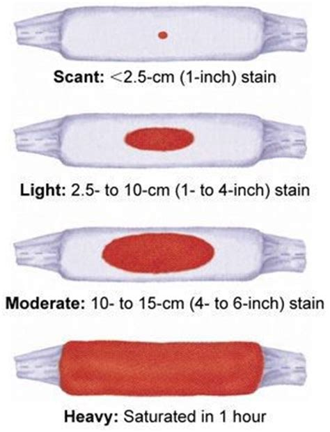 light bleeding after spotting or light bleeding cupidcare channel medium