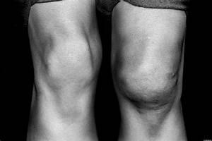 Magneticka rezonance kolene