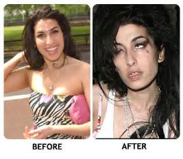 Amy Winehouse Before and After Drugs
