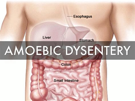 Dysentery Causes Symptoms And Treatment Health Care