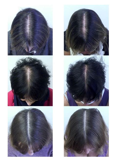 supplement combo reduced hair loss