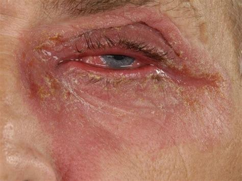 oogdruppels jeukende ogen hooikoorts