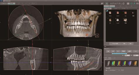 cbct panoramic imaging 3d era system imageworks warranty