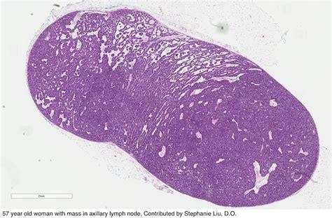 Pathology Outlines Eccrine Spiradenoma