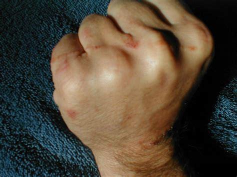 Irritant Contact Dermatitis Skin Image
