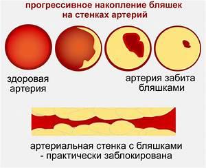 B адреноблокаторы при гипертонии
