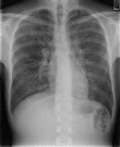 Sarcoidosis Lung X Ray Interstitial lung disease Interstitial lung disease