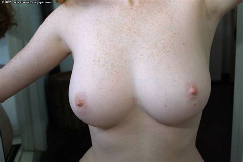 In Gallery Pale Redhead Picture Uploaded By L Obsede On ImageFap Com