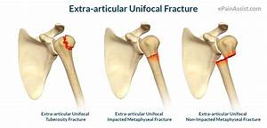 Proximal Humerus Fracture: Treatment, Exercises, Causes ...