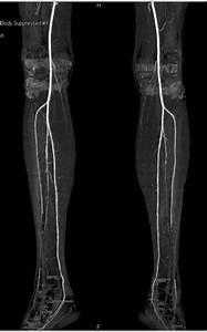 Multisites Vascular Disease In Both Lower Extremities