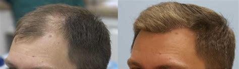 propecia shedding 6 months 4000 fue graft hair transplant 2 day surgery carolina