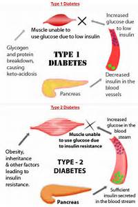What Were Your Symptoms Of Type 1 Diabetes diabetes