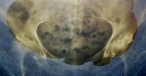 Hip Bone Cancer Symptoms - LIVESTRONG.COM  Shoulder Pain Bone tumors