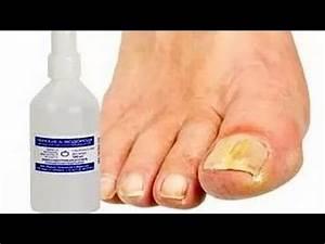 Отбеливатель для белья от грибка ногтей