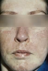 Mixed Connective Tissue Disease