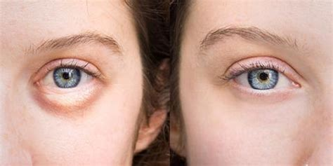 Puffy Eyes and How To Treat Them - Face & Body Treatment