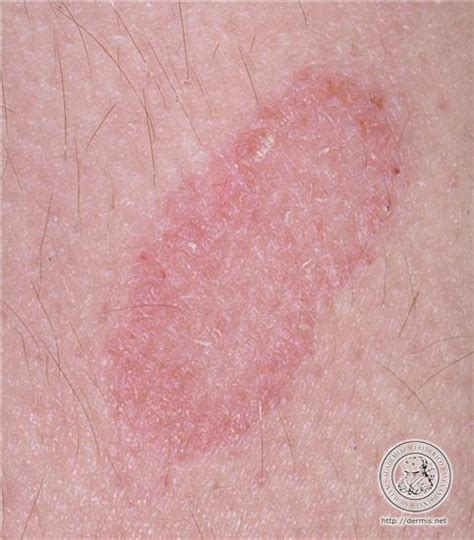 Plaque psoriasis wikipedia