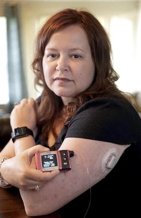 health insurers limit  insulin pumps worries patients