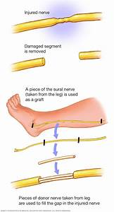 Peripheral Nerve Graft
