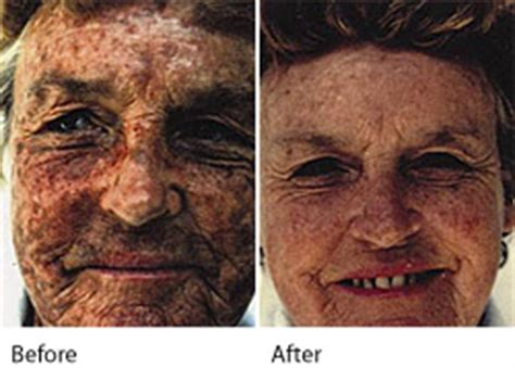 blue light treatment for sun damage sun damage treatment experts in leeds wakefield west