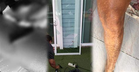 แชร์ประสบการณ์แย่ พูลวิลล่า ประตูตกใส่เย็บ27เข็มบวกแก๊สบ ...