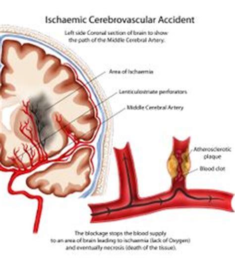 cva cerebrovascular accident  pinterest physical