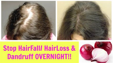 stop shedding hair how to stop and prevent hair breakage and maintain the