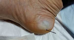 The Three Most Common Blisters At Big Red Run 2016  U2014 Blister Prevention