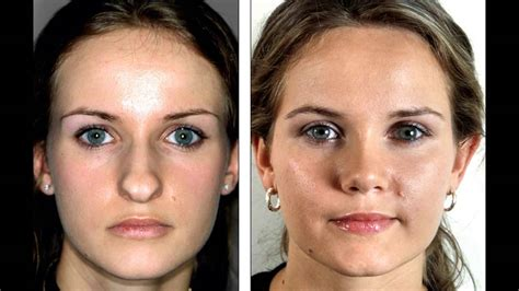 Best Rhinoplasty Sydney Plastic Surgery  Youtube. Medical College In New York Bed Set Covers. University Of North Texas Application. Lawyers For Disability Appeals. Treating Depression With Diet. Online Stock Trading Courses Sierra 7 Game. Workers Comp Attorney Philadelphia. Stonegate Mortgage Company Oregon Rn Programs. Community Colleges In Tulsa Amazon Gpu Cloud
