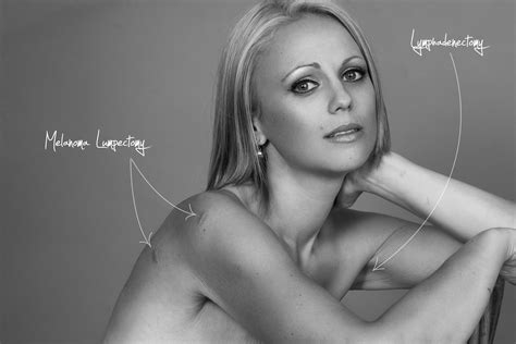 Beth Whaangas Powerful Breast Cancer Portraits Lost Her