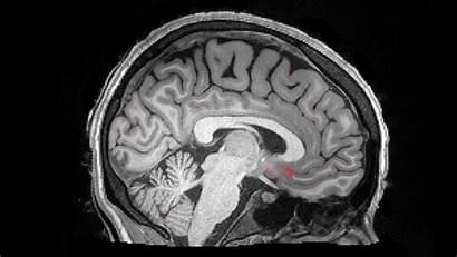 Brain Sleep Alzheimer Deep Sleeping Fluid Waves