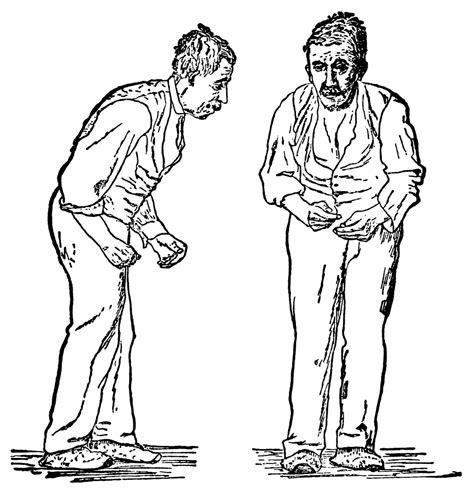 parkinsons disease wikipedia