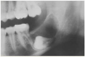 Ameloblastic Fibroma. Most often occurs in the first two ...