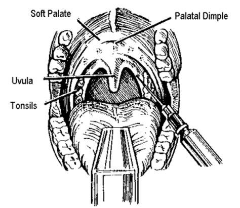 brians snoring surgery uppp tonsillectomy