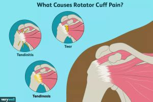 Shoulder Anatomy and Rotator Cuff Injury - Body Complete