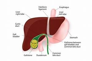 Gallstones - Gastrointestinal Conditions